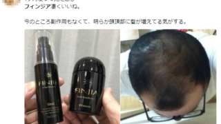 【フィンジア】薄毛遺伝子に打ち勝つ方法がついに登場!?噂のアレを試した結果…